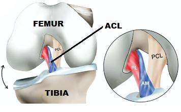 a study of the anterior cruciate ligament acl injuries Numerous clinical tests are used in the diagnosis of anterior cruciate ligament (acl) injury but their accuracy is unclear the purpose of this study is to evaluate the diagnostic accuracy of clinical tests for the diagnosis of acl injury.